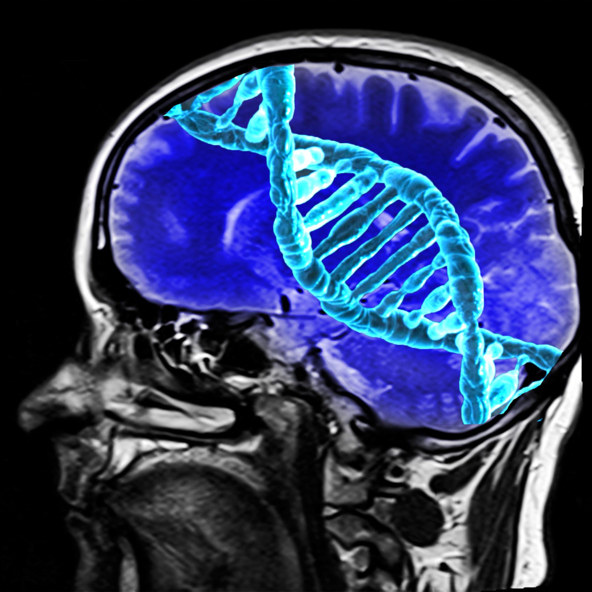 dna-brain